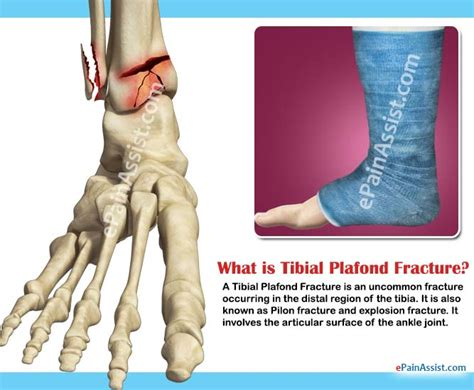 Tibial Plafond by Tibial Plafond Fracture Classifications Symptoms Treatment