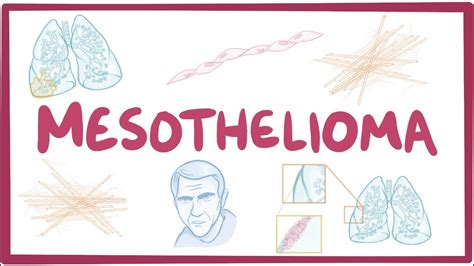mesothelioma causes symptoms diagnosis treatment pathology free medical videos
