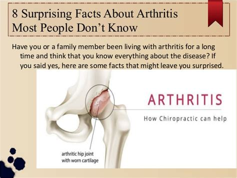 8 Things About You Do Not by 8 Surprising Facts About Arthritis Most Don T