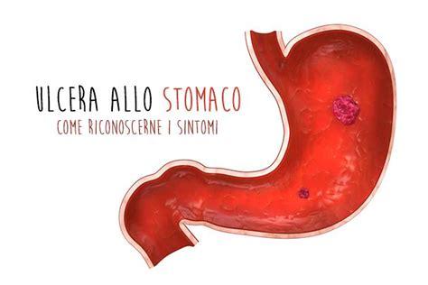 alimentazione ulcera duodenale ulcera allo stomaco come riconoscerne i sintomi