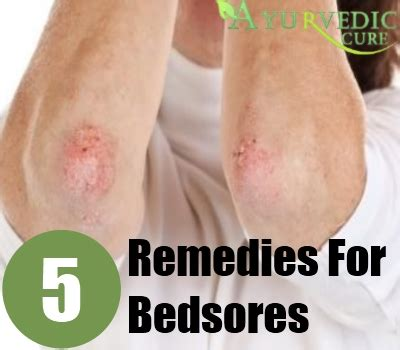 how to treat bed sores on buttocks by the bed sores buttocks pictures to pin on pinterest