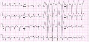 Left bundle branch block electrocardiogram wikidoc