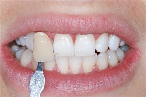 tooth whitening london teeth bleaching liverpool street