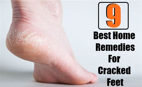 9 best home remedies for cracked search home remedy