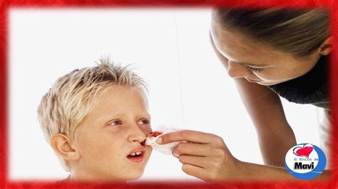 porque sale sangre por la nariz 191 porque sangra la nariz hemorragia nasal remedios
