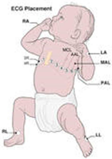pediatric lead placement diagram ekg lead placement diagram ekg get free image about