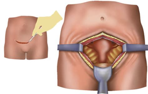 vaginal discharge after c section fibroids cause brown discharge