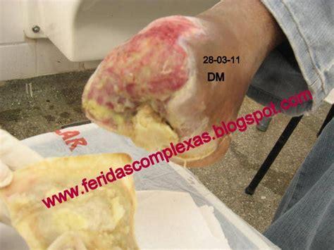feridas complexas com 218 lceras em p 233 diab 233 tico casos cl 237 nicos