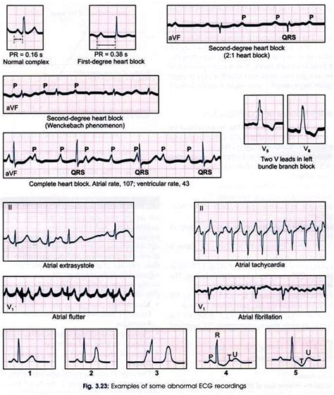 ecg pattern meaning electrocardiogram recording meaning and significance