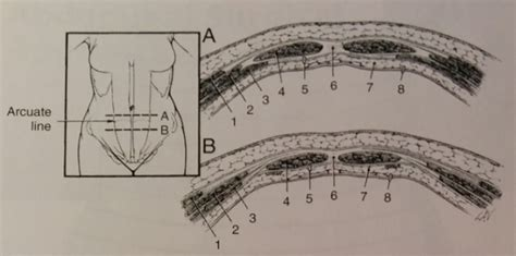 transverse section of the abdomen anatomy of the anterior abdominal wall articles about