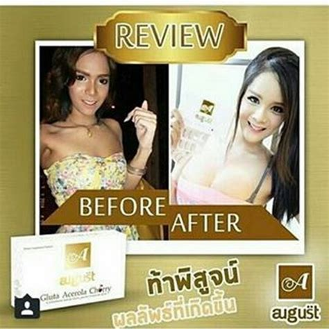 Gluta August gluta august gluta acerola cherry richelle shop