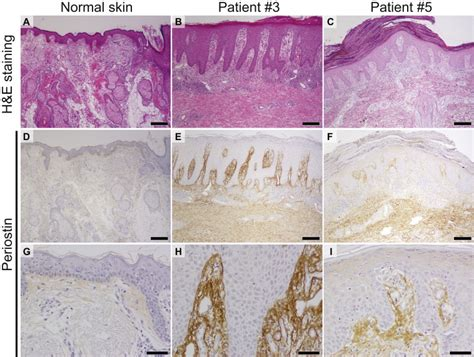why are histological sections stained histological views of skin tissues of psoriasis patients