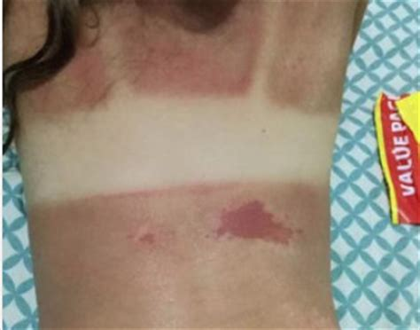 banana boat sunscreen contact banana boat sunscreen users cop horrific burns blame