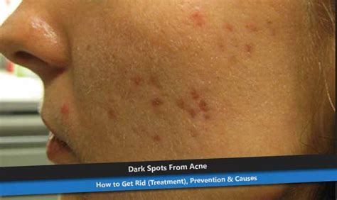Acnes Spot pimplesremedyideas all about pimples causes how to get rid