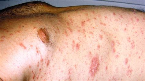 christmas tree rash picture how do you get pityriasis rosea