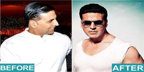 akshay kumar hair transplant 10 bollywood stars that underwent the hair transplant surgery