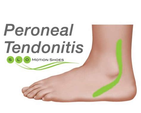 running shoes for peroneal tendonitis peroneal tendon injuries slo motion shoesslo motion shoes