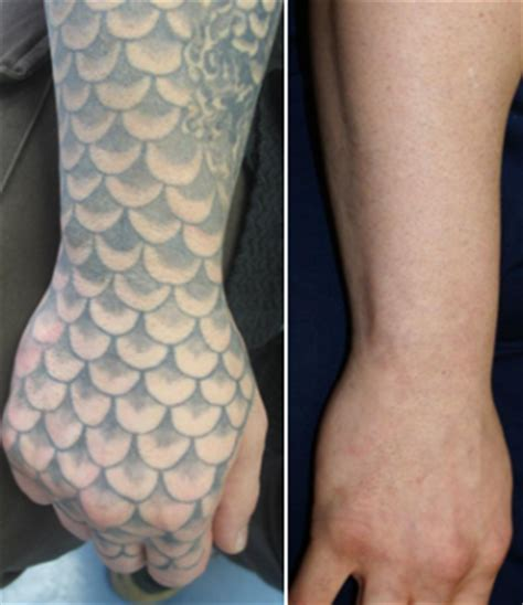 is laser tattoo removal really safe the skiny