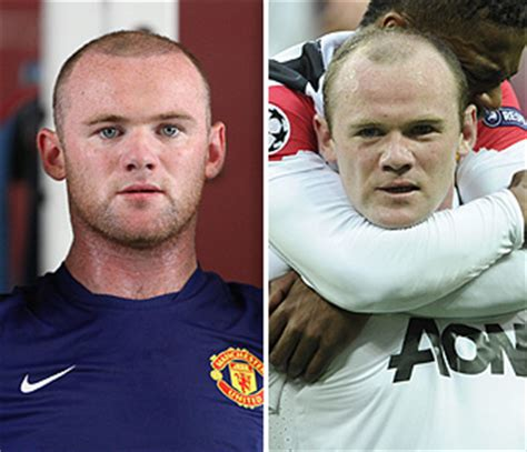 wayne rooney shows off the results of second hair wayne rooney shows off results of hair transplant latest