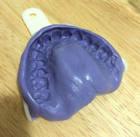 order  desired teeth device  ship  teeth