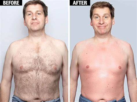 before and after shots of males with pubic hair and then with it removed before and after men chest hair daily funny pictures 10 pics