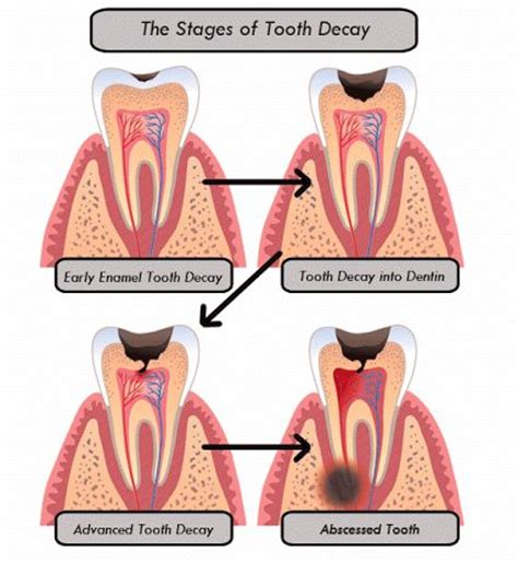decay an initial exploration of the diminishing of facts and analysis in american books the stages of tooth decay 1 early enamel tooth decay 2