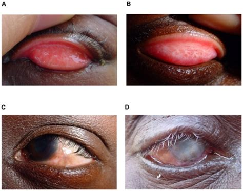 Blinding Trachoma vision screening assessment screening caring for