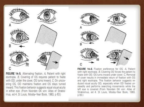 ambliopia test amblyopia and its management