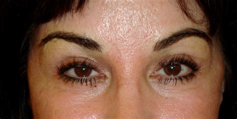 tattoo removal makeup permanent makeup different removal methods