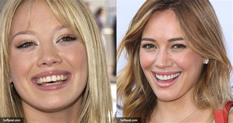 The Most Unique Crooked 21 celebrities with dental implants or cosmetic dentistry