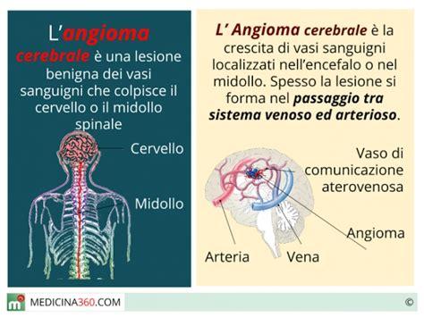 angioma alla testa angioma cerebrale