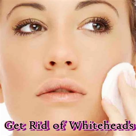 Get Rid Of Gift Cards - get rid of whiteheads amazon ca appstore for android