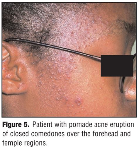 a review of acne in ethnic skin pathogenesis clinical a review of acne in ethnic skin pathogenesis clinical