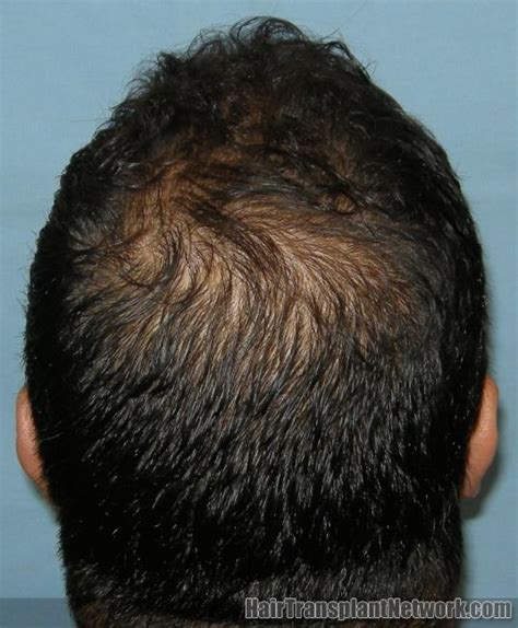 hair loss help forums avodart and panic attacks anxiety propecia hair shedding phase hairsstyles co