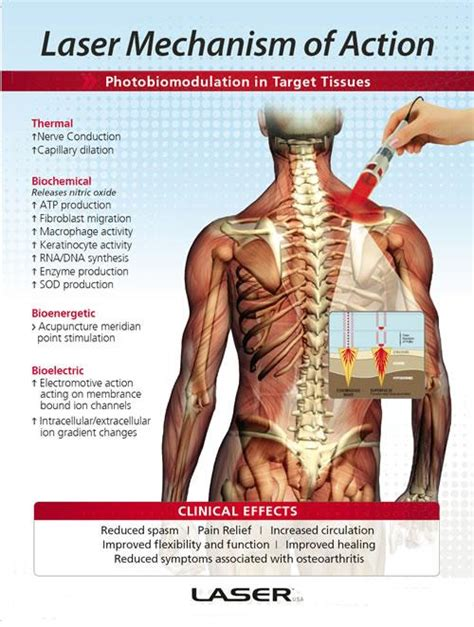Laser Therapy Trigger Points Detox by Laser Therapy Allternative Chiropractic