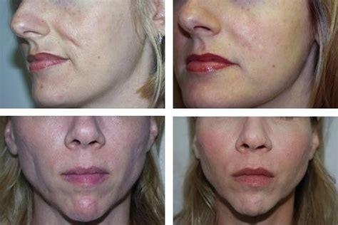 acne and acne scar treatment carniol plastic surgery