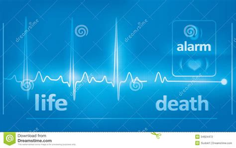 beats cardiogram and asystole on the monitor stock