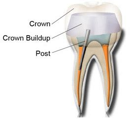 comfort dental lafayette indiana keywords root canal crown build up google trends