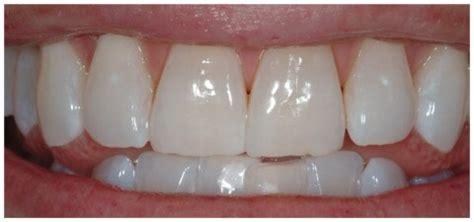 teeth whitening philips