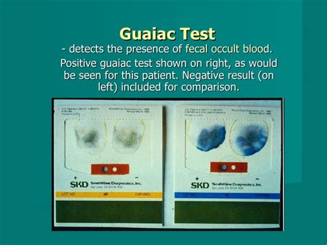 Occult Blood Test In Stool by Gastrointestinal