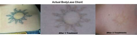 laser tattoo removal aftercare instructions laser removal bodylase 174 med spa raleigh cary nc