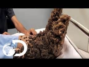 Tree Man Disease Discovery » Home Design 2017
