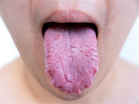 what color should my tongue be what your tongue says about your health what your tongue
