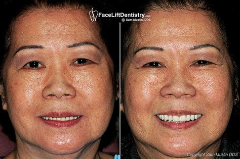 A Facelift For Your Teeth by Lift Dentistry 174 Makeover
