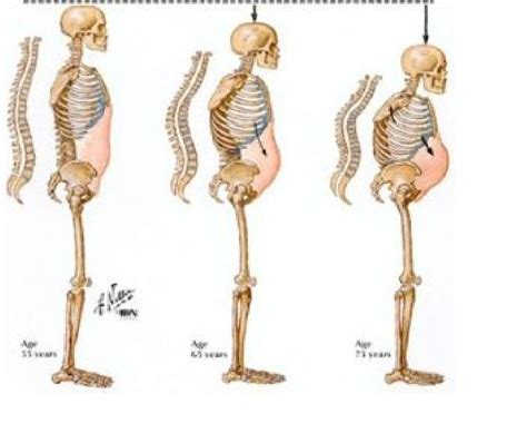 to the bone threatening illness and the search for meaning books 17 best images about osteoporosis on bone
