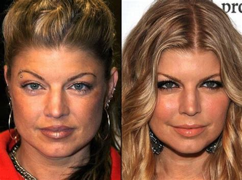 375 best images about celebrity plastic surgery on pinterest fergie before and after a plastic surgery celebrities
