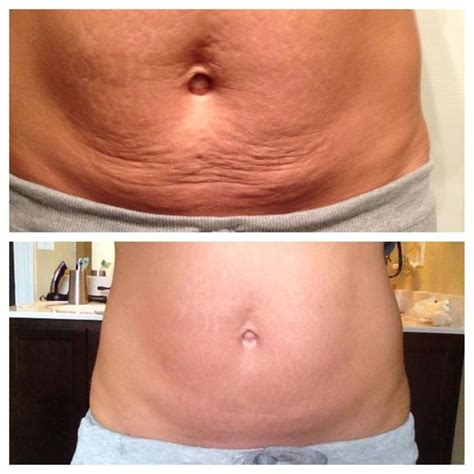how to tone up stomach after c section it works body wraps amazing to get rid of cellulite