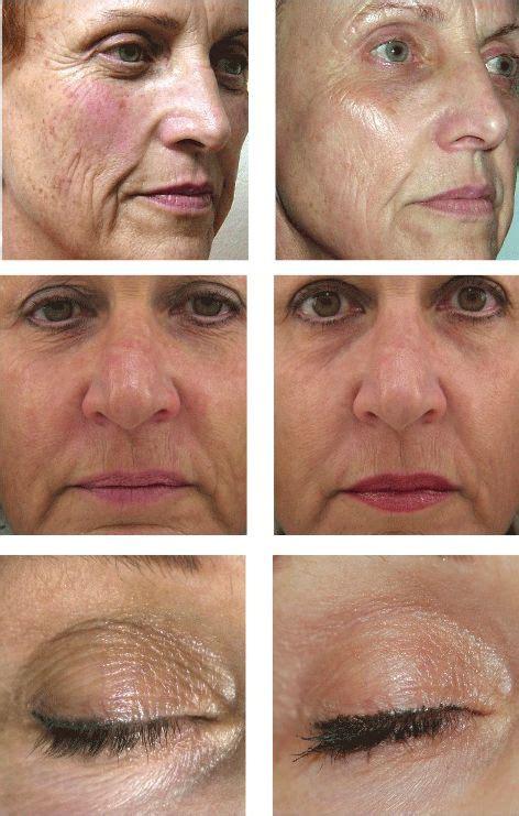 light treatment for face laserrf360 complete rejuvenation using laser radio