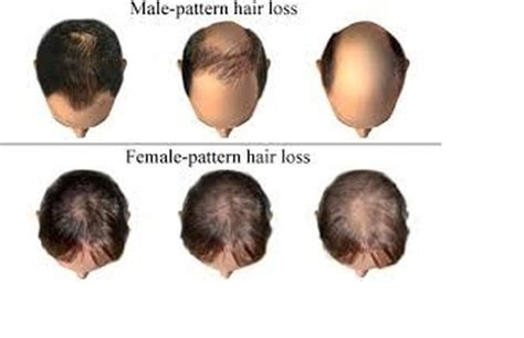 male pattern hair loss emedicine baldness treatment hair loss treatment