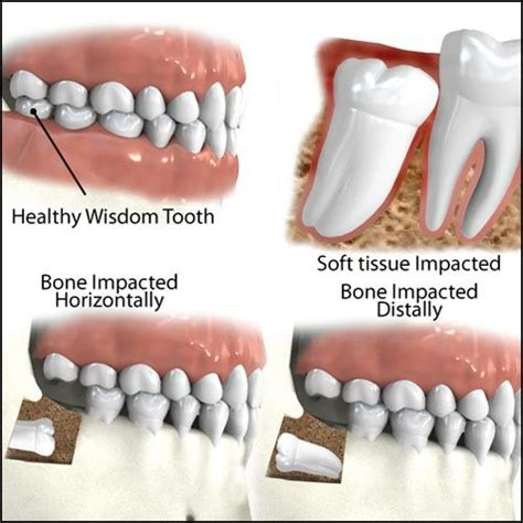 tooth extraction cost 1000 images about wisdom teeth on getting wisdom teeth out dental crowns